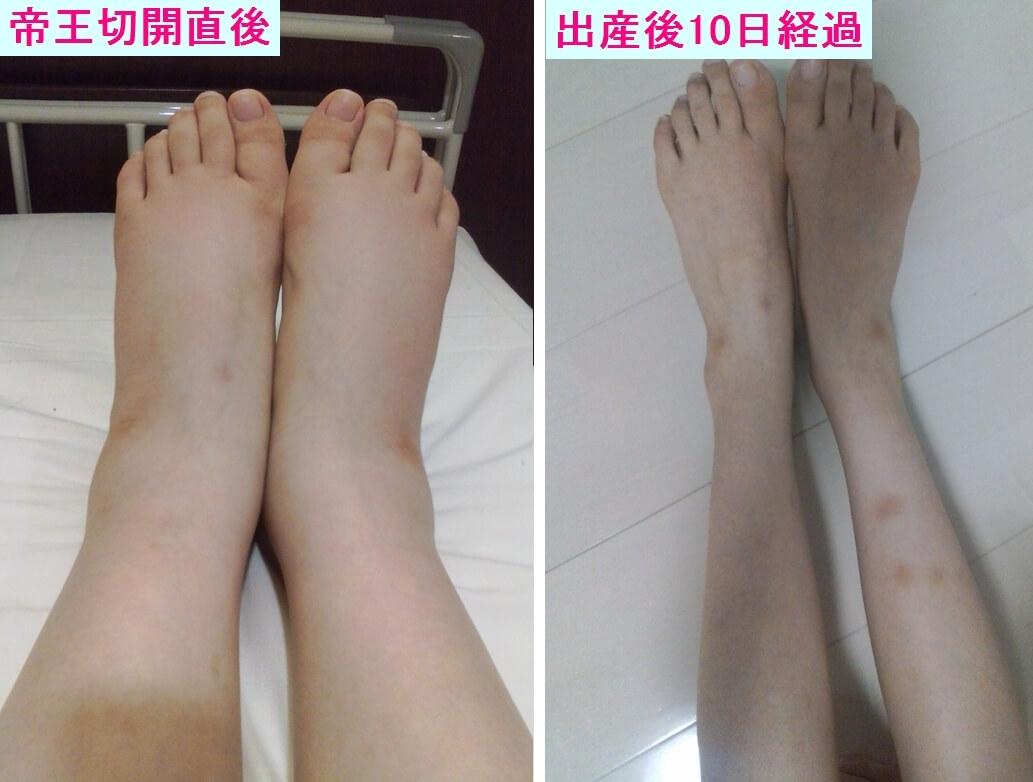 妊娠中とその後の脚の比較