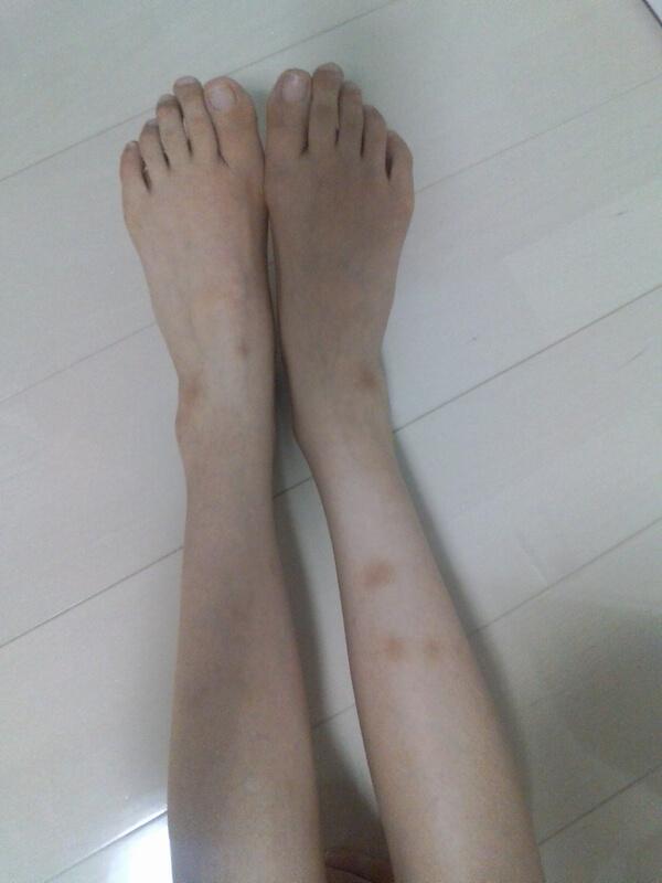 妊娠後の脚
